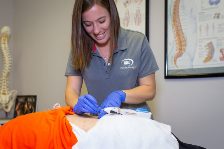 Dry Needling Mindi